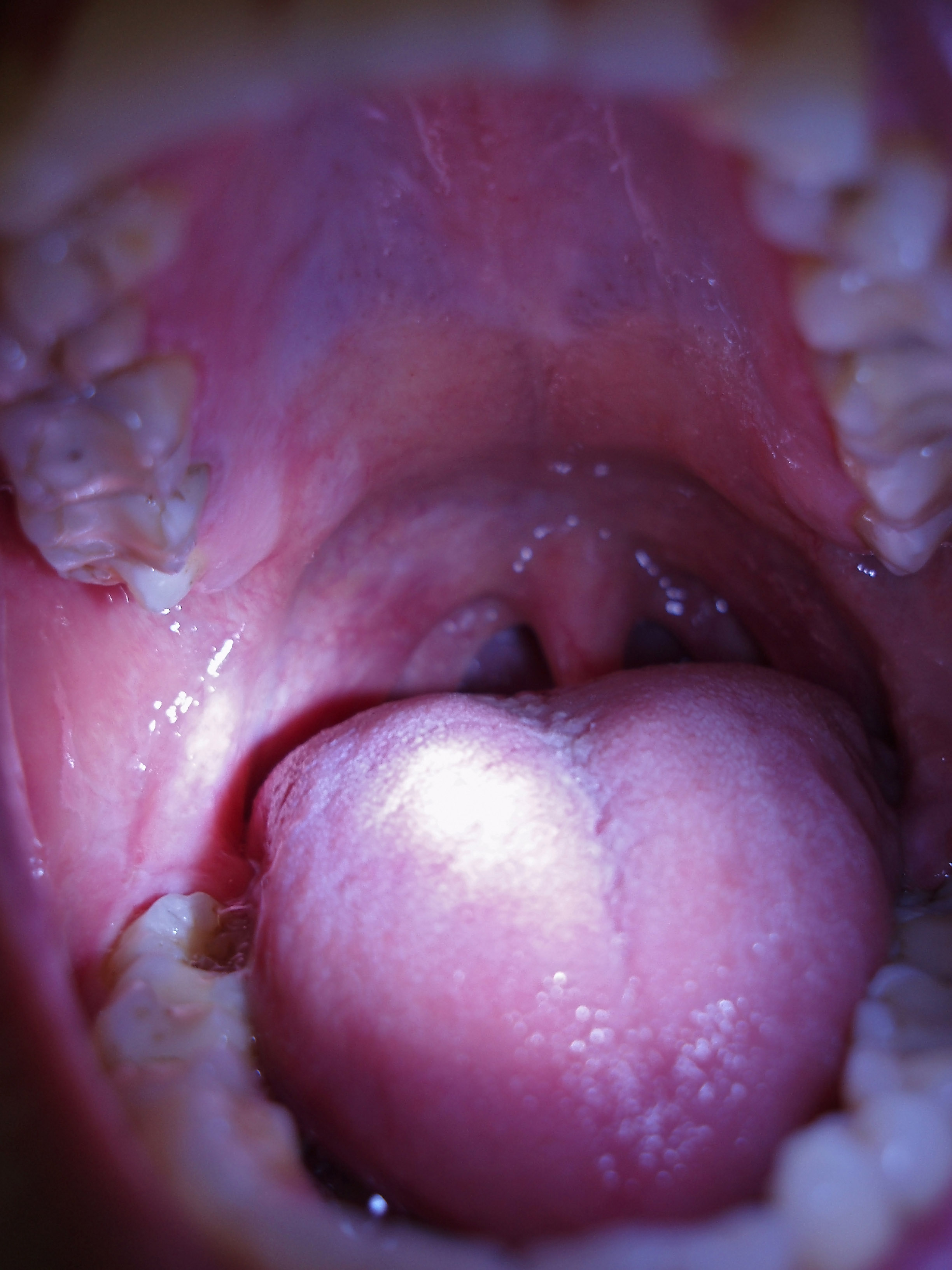 inside of a wide open mouth